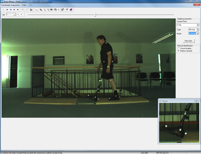 prosthesis clinical gait analysis